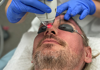 Fractionated Laser Resurfacing