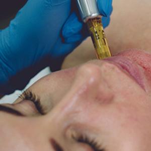 Microneedling/Skin Needling